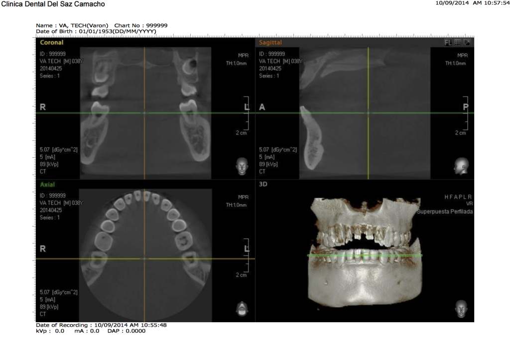 escaner dental1